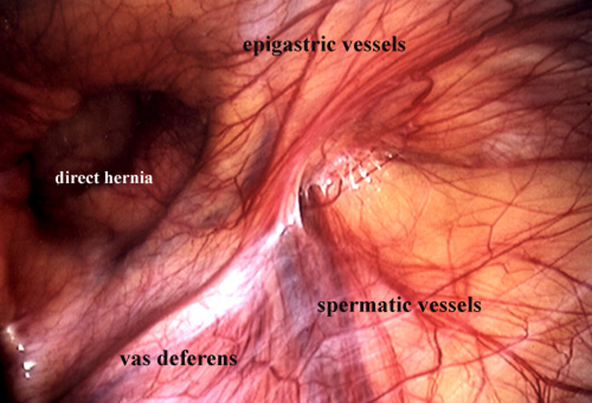 Inguinal Hernia as related to Hernias - Pictures